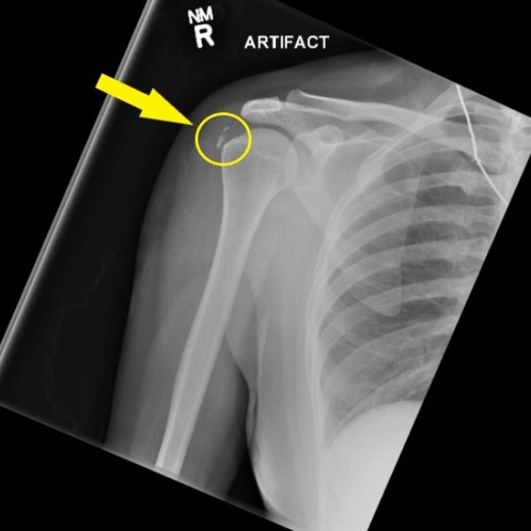 Calcific Tendinitis Page